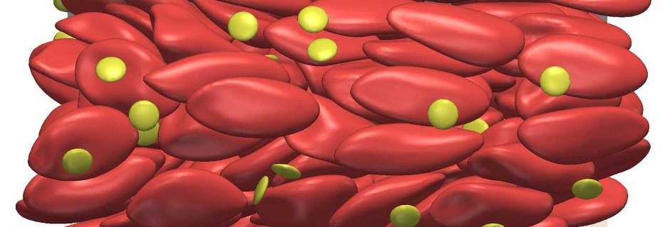 A simulation of red blood cells and blood platelets in a 30 µm tube