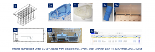 Bespoke healthcare components (not to scale): Model of part of a piece of plasticware used for PCR-based COVID testing (1); attempts to reproduce components of systems that can be used to help patients breathe (2a – 3b); design and prototype of new lock-box to house syringe pumps that administer medications (4a – 4b); screenshot of platform Aras Innovator, a piece of software used to manage product development and manufacture, which can be employed in adaptive manufacturing for healthcare (5).